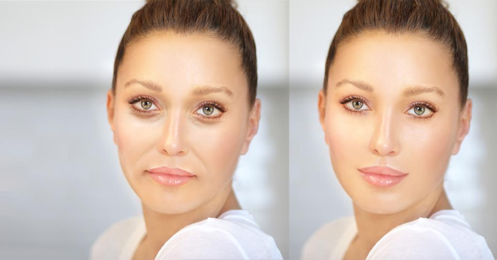 Aesthetic Services - Dermal Fillers