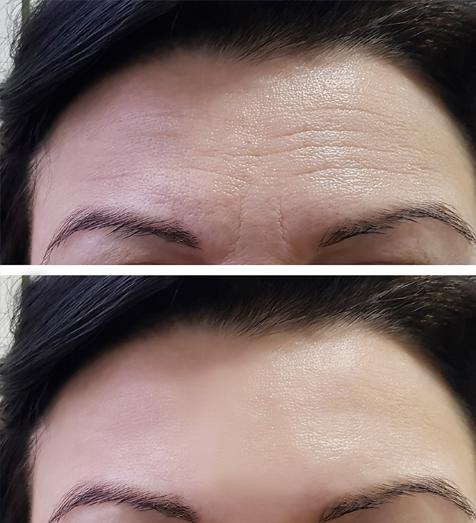 Aesthetic Services - Botox (Onabotulinumtoxina)